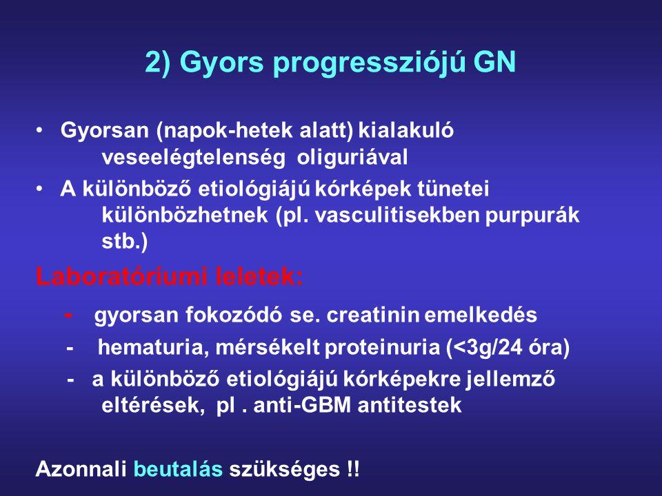 3) Nephrosis syndroma Generalizált oedema, mely követi a nehézségi erőt (elkülönítendő a jobb szívfél elégtelenségtől !!), gyakori thrombosisok, infekciók Laboratóriumi eltérések: - hypoproteinaemia, hypalbuminaemia, hypercholesterinaemia - súlyos proteinuria (>3.0-3.5 g/24 óra), lipiduria Azonnali beutalás szükséges !!