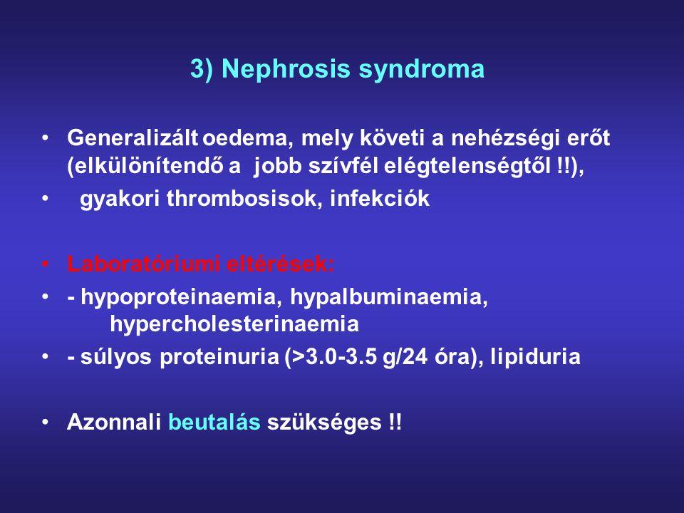 4) Olygosymptomás GN (tünetszegény vizelet eltérések) Laboratóriumi eltérések: - enyhe proteinuria - mikroszkópos haematuria (dysmorph vvt-k) - általában hosszú ideig normális a vesefunkció Átmeneti akut macrohaematuriás epizódok előfordulhatnak, gyakran átmeneti akut veseelégtelenséggel (5) Perzisztáló tünetek, egy éves megfigyelés után ill macrohaematuriánál beutalás szükséges !!