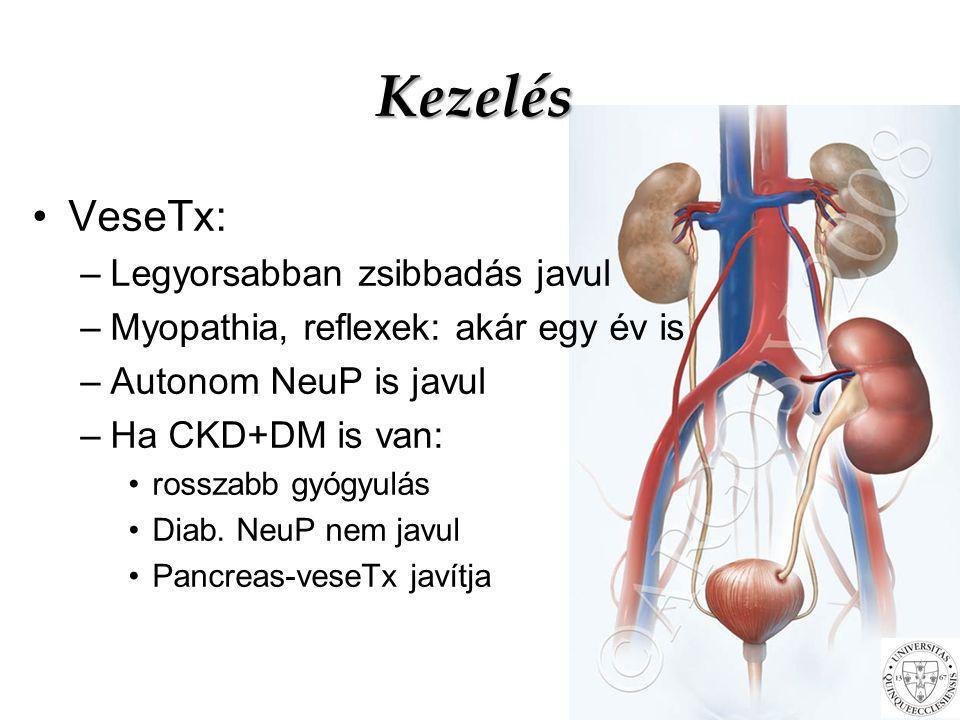 Kezelés VeseTx: –Legyorsabban zsibbadás javul –Myopathia, reflexek: akár egy év is –Autonom NeuP is javul –Ha CKD+DM is van: rosszabb gyógyulás Diab.