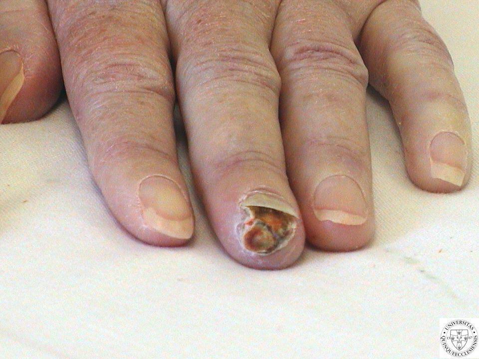 Oki kezelésként Alfa-liponsav (tioktánsav) Törzskönyv alapján: –Terápiás javallatok Diabeteses neuropathia Vesebetegségben való dózismódosítás nem szerepel