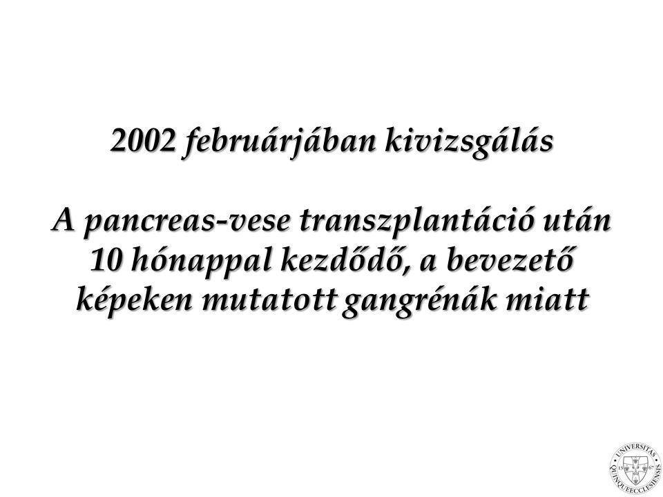 Kezelés Hiányállapotok: –Tiamin –Piridoxin –Metilkobalamin