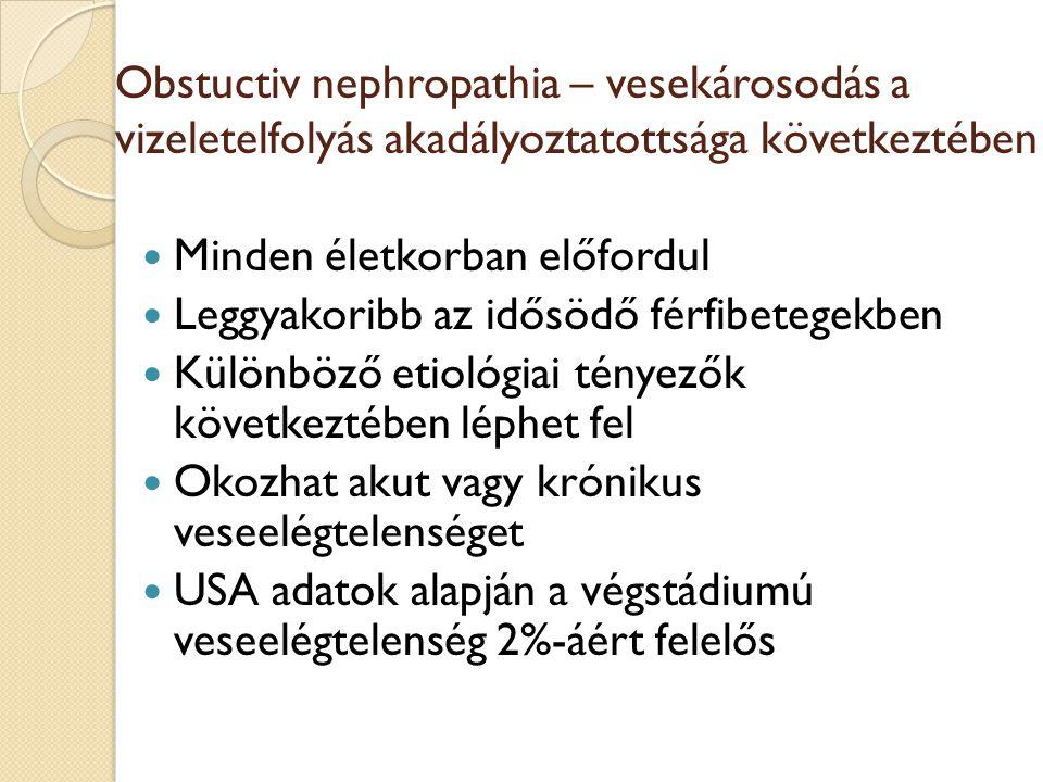 Obstuctiv nephropathia – vesekárosodás a vizeletelfolyás akadályoztatottsága következtében Minden életkorban előfordul Leggyakoribb az idősödő férfibe