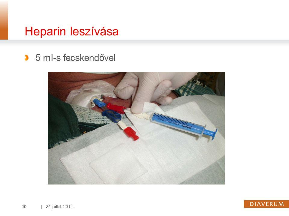 | 24 juillet 201410 Heparin leszívása 5 ml-s fecskendővel