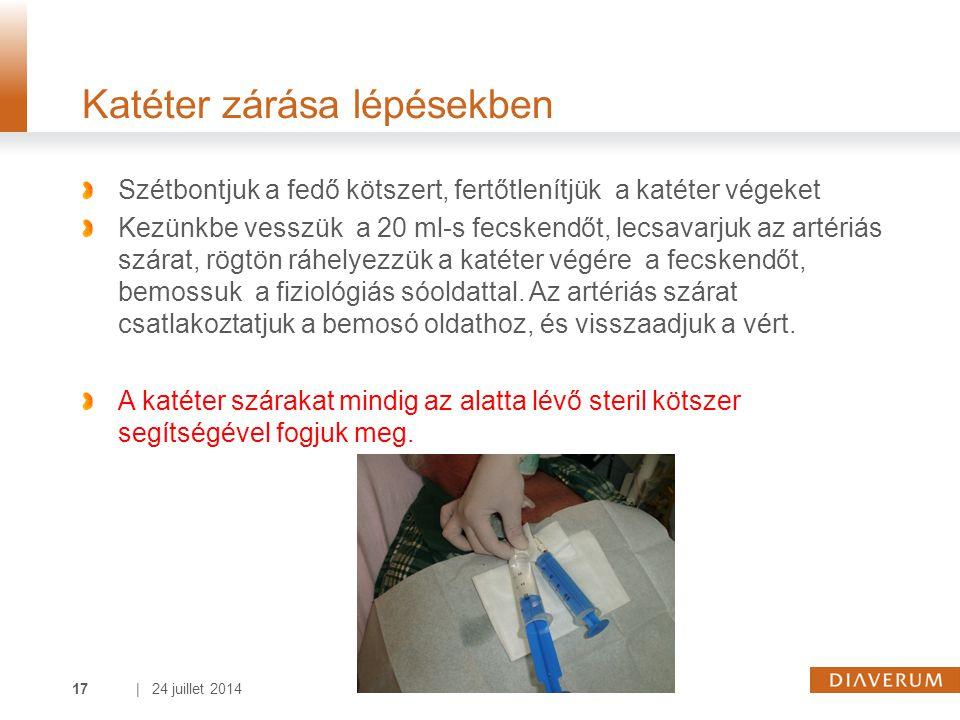 | 24 juillet 201417 Katéter zárása lépésekben Szétbontjuk a fedő kötszert, fertőtlenítjük a katéter végeket Kezünkbe vesszük a 20 ml-s fecskendőt, lecsavarjuk az artériás szárat, rögtön ráhelyezzük a katéter végére a fecskendőt, bemossuk a fiziológiás sóoldattal.