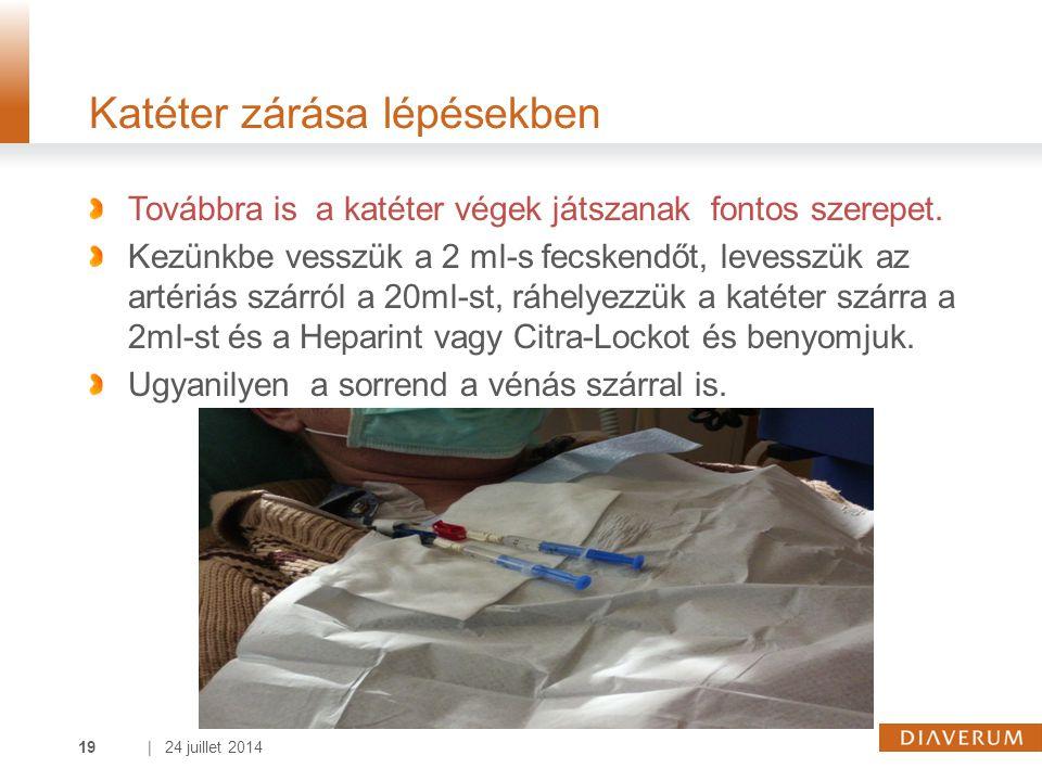 | 24 juillet 201419 Katéter zárása lépésekben Továbbra is a katéter végek játszanak fontos szerepet. Kezünkbe vesszük a 2 ml-s fecskendőt, levesszük a