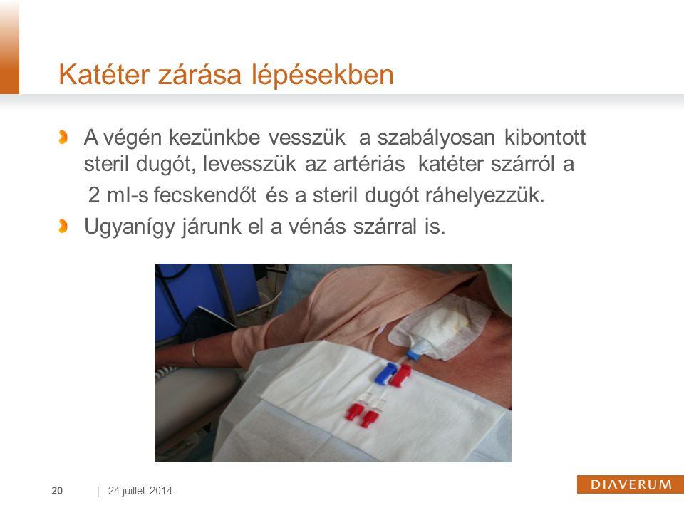 | 24 juillet 201420 Katéter zárása lépésekben A végén kezünkbe vesszük a szabályosan kibontott steril dugót, levesszük az artériás katéter szárról a 2 ml-s fecskendőt és a steril dugót ráhelyezzük.