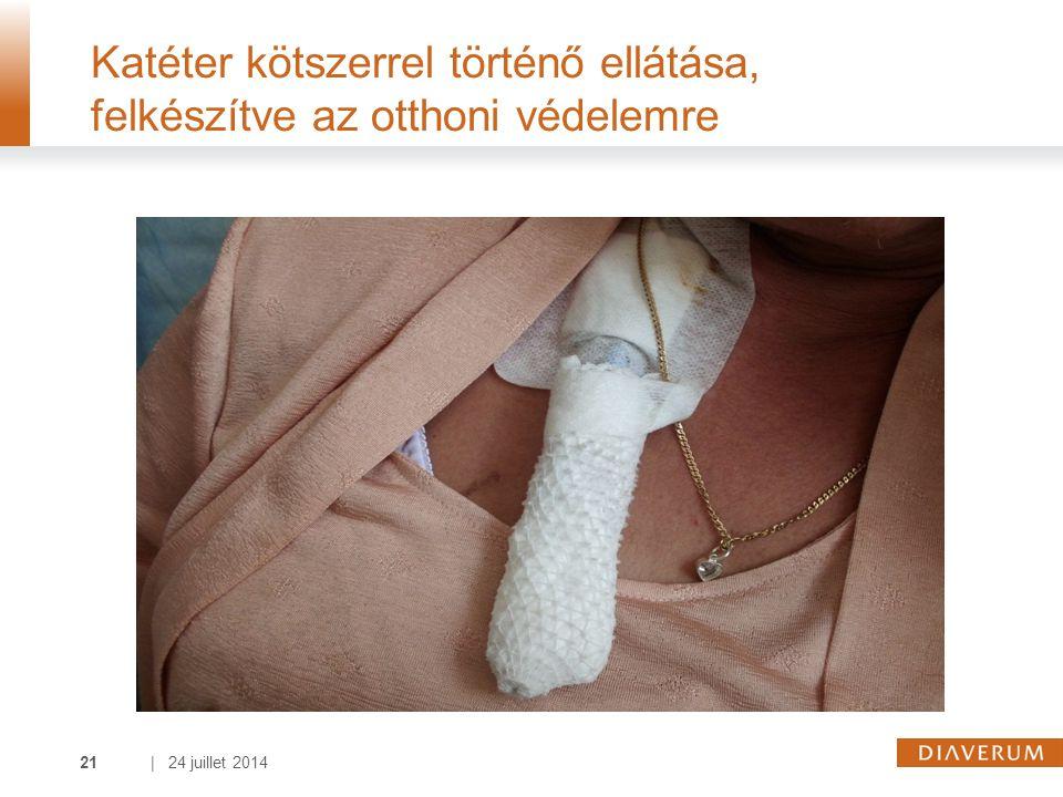 | 24 juillet 201421 Katéter kötszerrel történő ellátása, felkészítve az otthoni védelemre
