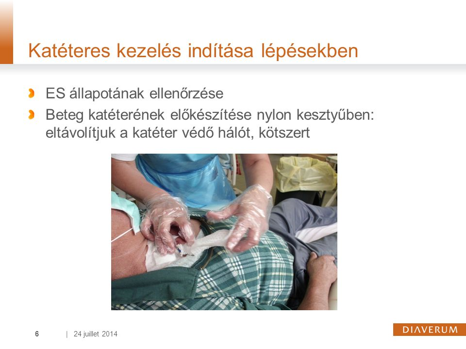 | 24 juillet 20146 Katéteres kezelés indítása lépésekben ES állapotának ellenőrzése Beteg katéterének előkészítése nylon kesztyűben: eltávolítjuk a katéter védő hálót, kötszert