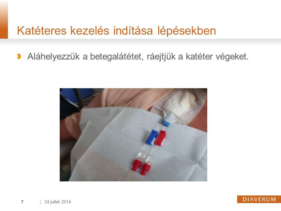 | 24 juillet 20147 Katéteres kezelés indítása lépésekben Aláhelyezzük a betegalátétet, ráejtjük a katéter végeket.