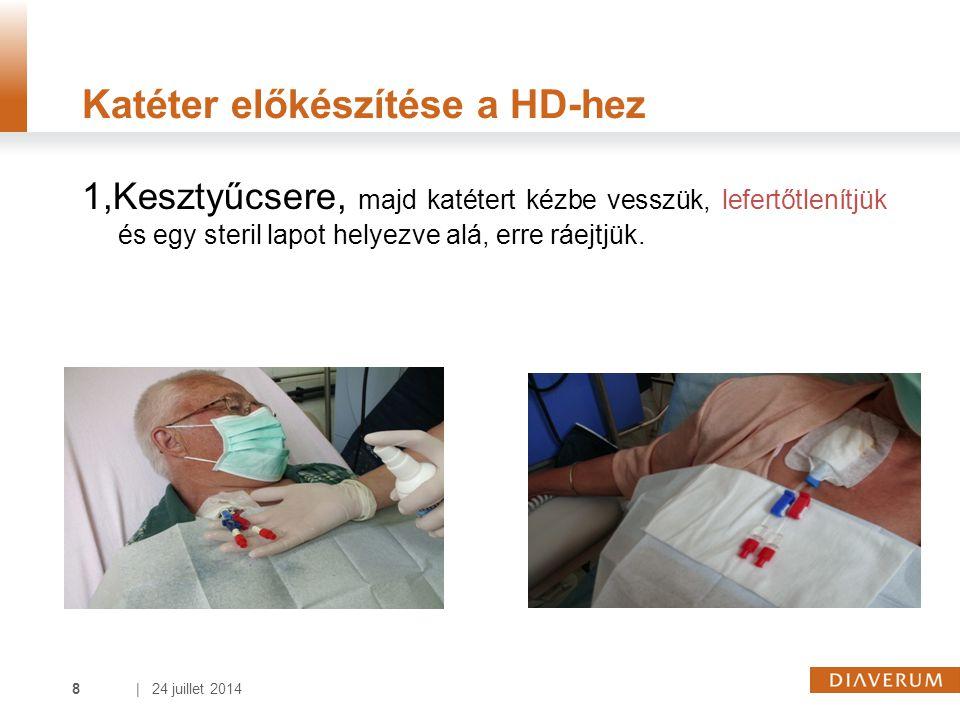| 24 juillet 20148 Katéter előkészítése a HD-hez 1,Kesztyűcsere, majd katétert kézbe vesszük, lefertőtlenítjük és egy steril lapot helyezve alá, erre ráejtjük.