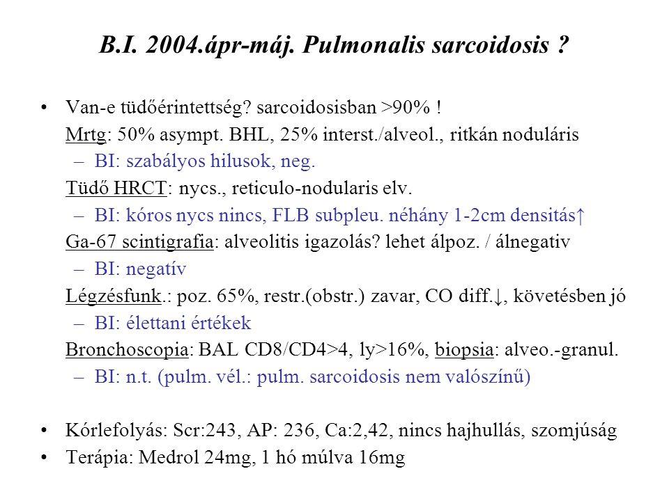 B.I. 2004.ápr-máj. Pulmonalis sarcoidosis ? Van-e tüdőérintettség? sarcoidosisban >90% ! Mrtg: 50% asympt. BHL, 25% interst./alveol., ritkán noduláris