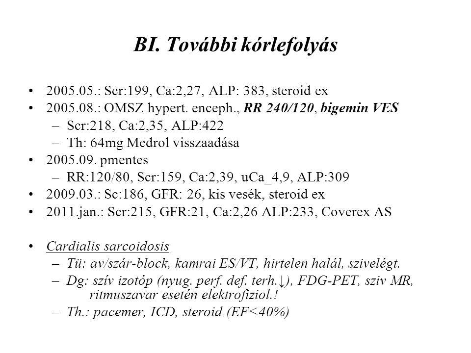 BI. További kórlefolyás 2005.05.: Scr:199, Ca:2,27, ALP: 383, steroid ex 2005.08.: OMSZ hypert. enceph., RR 240/120, bigemin VES –Scr:218, Ca:2,35, AL