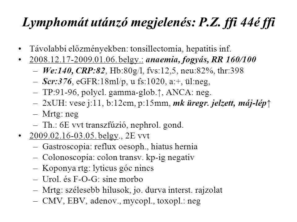 Lymphomát utánzó megjelenés: P.Z. ffi 44é ffi Távolabbi előzményekben: tonsillectomia, hepatitis inf. 2008.12.17-2009.01.06. belgy.: anaemia, fogyás,