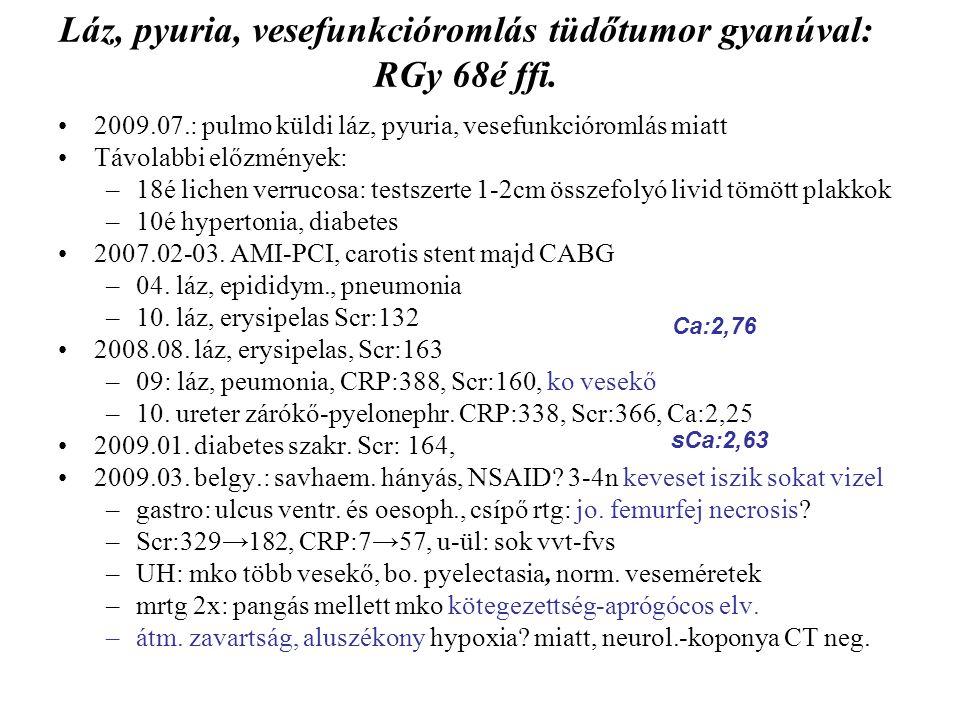 Láz, pyuria, vesefunkcióromlás tüdőtumor gyanúval: RGy 68é ffi. 2009.07.: pulmo küldi láz, pyuria, vesefunkcióromlás miatt Távolabbi előzmények: –18é