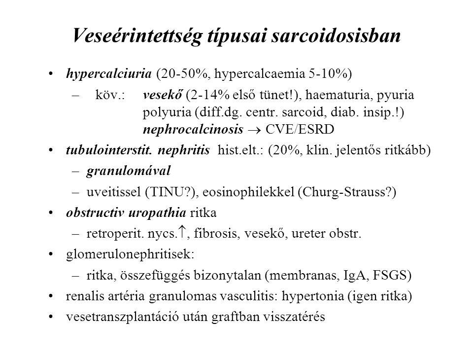 Veseérintettség típusai sarcoidosisban hypercalciuria (20-50%, hypercalcaemia 5-10%) –köv.:vesekő (2-14% első tünet!), haematuria, pyuria polyuria (di