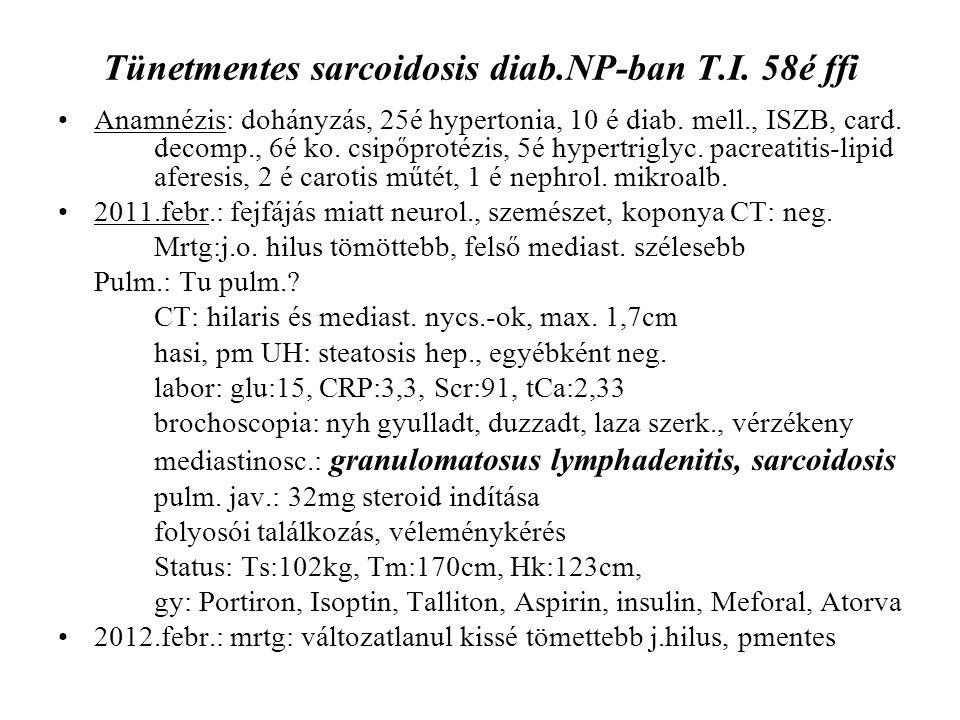 Tünetmentes sarcoidosis diab.NP-ban T.I. 58é ffi Anamnézis: dohányzás, 25é hypertonia, 10 é diab. mell., ISZB, card. decomp., 6é ko. csipőprotézis, 5é