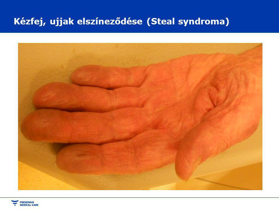 Kézfej, ujjak elszíneződése (Steal syndroma)