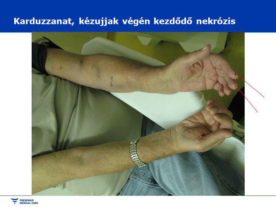 Karduzzanat, kézujjak végén kezdődő nekrózis