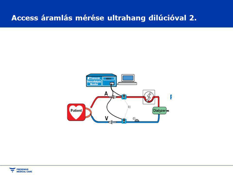 Access áramlás mérése ultrahang dilúcióval 2.
