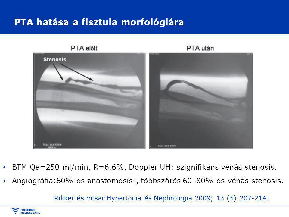 PTA hatása a fisztula morfológiára a morfológiára BTM Qa=250 ml/min, R=6,6%, Doppler UH: szignifikáns vénás stenosis.