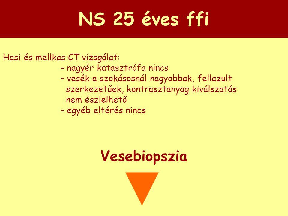 NS 25 éves ffi Hasi és mellkas CT vizsgálat: - nagyér katasztrófa nincs - vesék a szokásosnál nagyobbak, fellazult szerkezetűek, kontrasztanyag kiváls