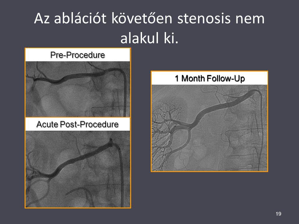 Az ablációt követően stenosis nem alakul ki. 19Pre-Procedure Acute Post-Procedure 1 Month Follow-Up