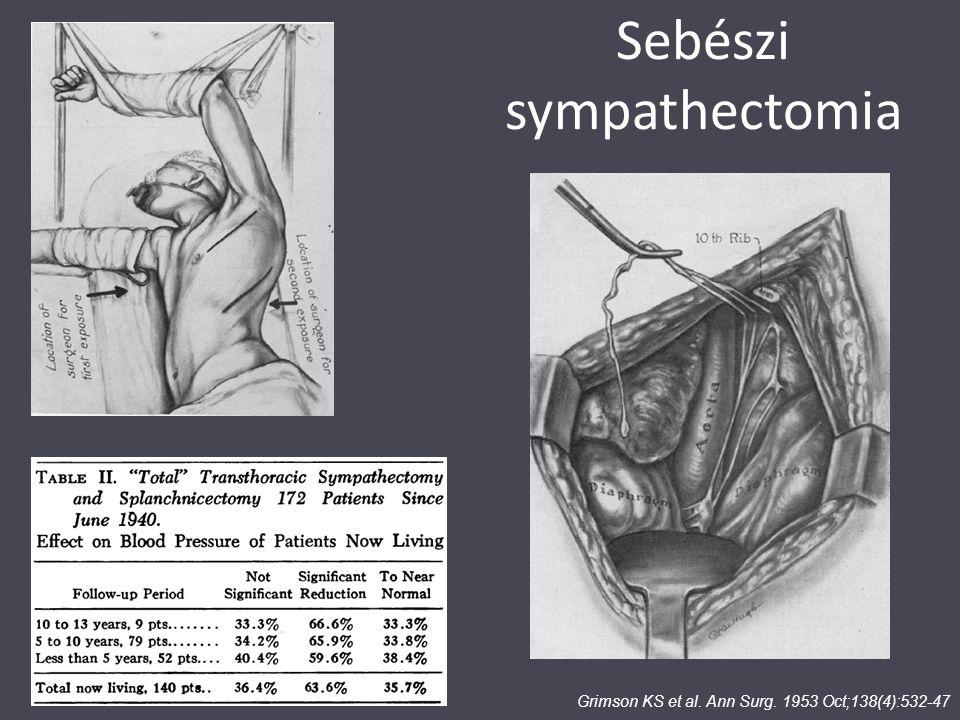 Sebészi sympathectomia Grimson KS et al. Ann Surg. 1953 Oct;138(4):532-47