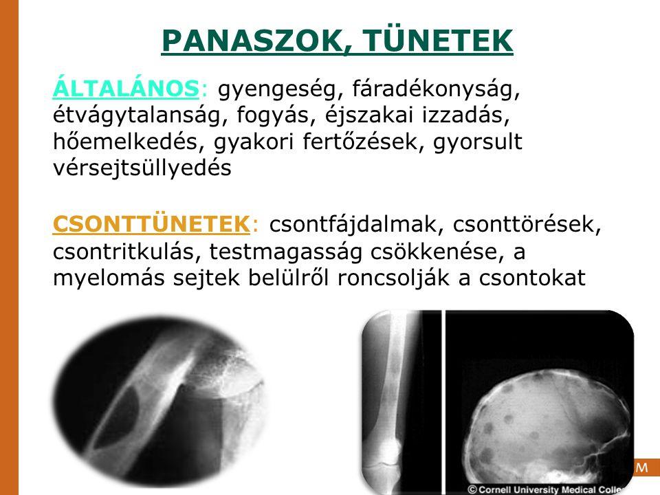 PANASZOK, TÜNETEK VÉRKÉPZÉS: a myelomás sejtek kiszorítják a normál vérképzést: anaemia, leukopenia, thrombocytopenia HYPERVISCOSITAS: látászavar, központi idegrendszeri tünetek, szédülés, émelygés, keringési elégtelenség, trombózis, embólia VESEKÁROSODÁS OKAI: - hypercalcaemia - kontrasztanyag - könnyűlánc fehérjék változatos vesebetegségek: - könnyűlánc-lerakódási betegség - öntvény nephropathia - amyloidosis
