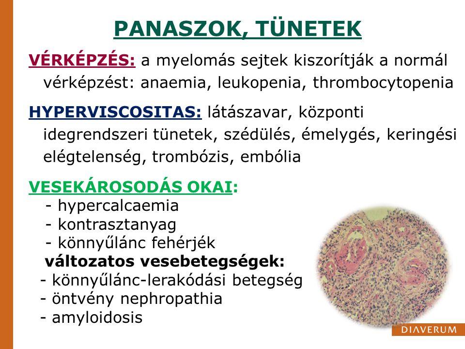 PANASZOK, TÜNETEK VÉRKÉPZÉS: a myelomás sejtek kiszorítják a normál vérképzést: anaemia, leukopenia, thrombocytopenia HYPERVISCOSITAS: látászavar, köz