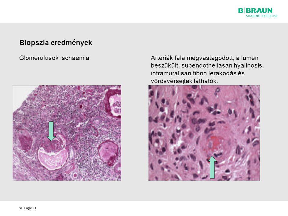 sl | Page11 Biopszia eredmények Glomerulusok ischaemiaArtériák fala megvastagodott, a lumen beszűkült, subendotheliasan hyalinosis, intramuralisan fibrin lerakodás és vörösvérsejtek láthatók.