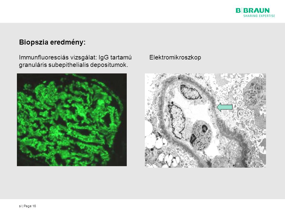 sl | Page16 Biopszia eredmény: Immunfluoresciás vizsgálat: IgG tartamú granuláris subepithelialis depositumok.