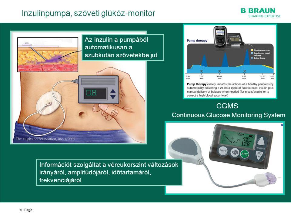 sl | Page19 Az inzulin a pumpából automatikusan a szubkután szövetekbe jut Inzulinpumpa, szöveti glükóz-monitor CGMS Continuous Glucose Monitoring Sys