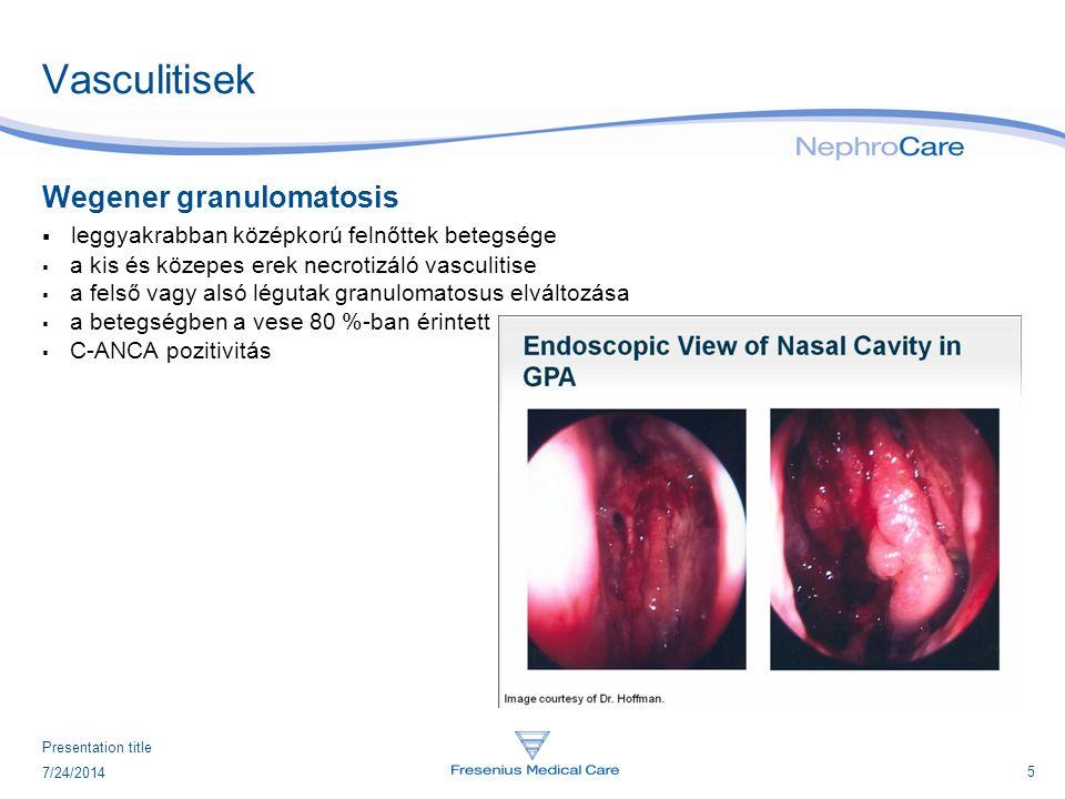 5 7/24/2014 Presentation title Vasculitisek Wegener granulomatosis  leggyakrabban középkorú felnőttek betegsége  a kis és közepes erek necrotizáló v