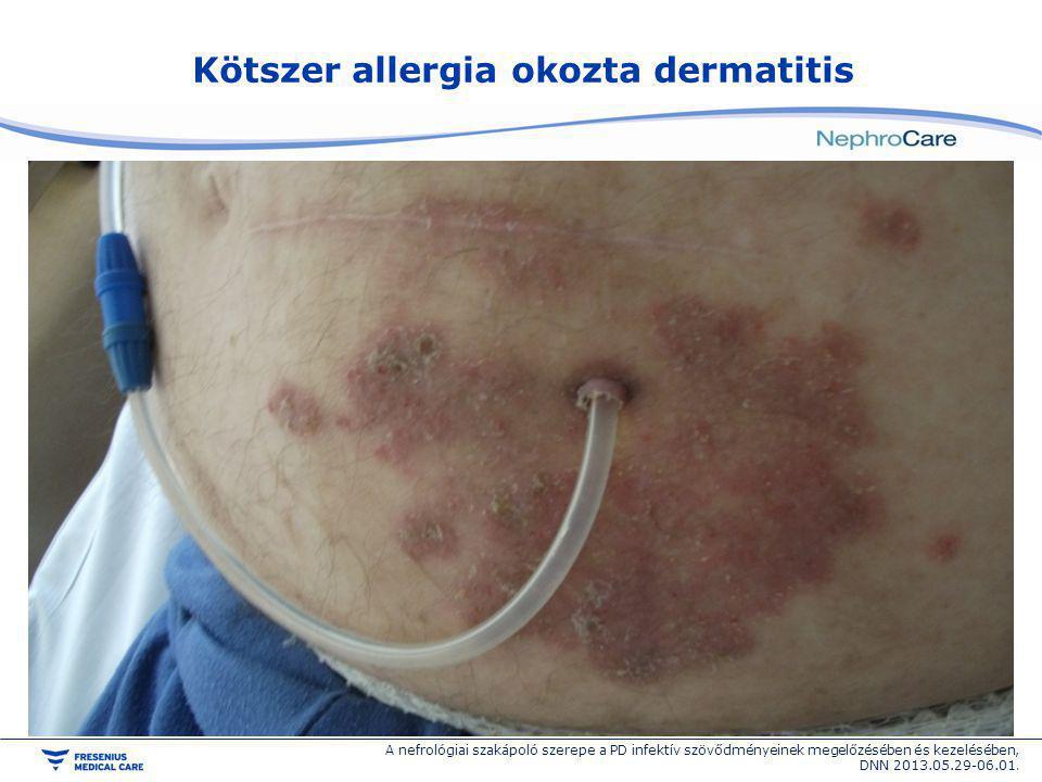 Kötszer allergia okozta dermatitis A nefrológiai szakápoló szerepe a PD infektív szövődményeinek megelőzésében és kezelésében, DNN 2013.05.29-06.01.
