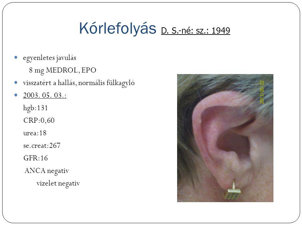 Kórlefolyás D. S.-né: sz.: 1949 egyenletes javulás 8 mg MEDROL, EPO visszatért a hallás, normális fülkagyló 2003. 05. 03.: hgb:131 CRP:0,60 urea:18 se