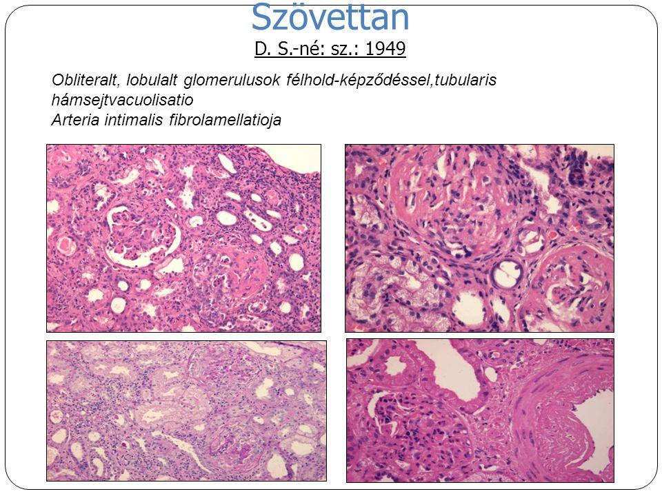 Szövettan D. S.-né: sz.: 1949 Obliteralt, lobulalt glomerulusok félhold-képződéssel,tubularis hámsejtvacuolisatio Arteria intimalis fibrolamellatioja