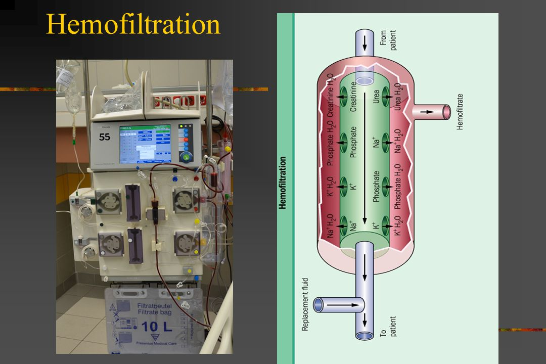Hemofiltration