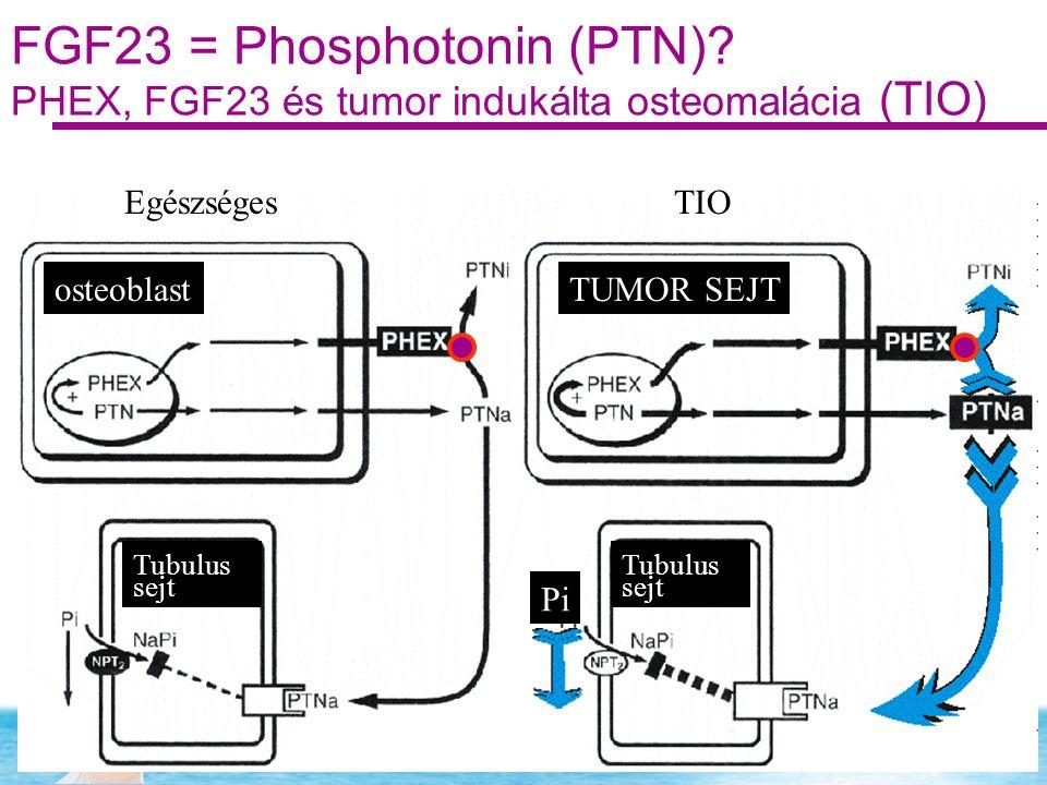 FGF23 = Phosphotonin (PTN)? PHEX, FGF23 és tumor indukálta osteomalácia (TIO) EgészségesTIO osteoblastTUMOR SEJT Tubulus sejt Tubulus sejt Pi