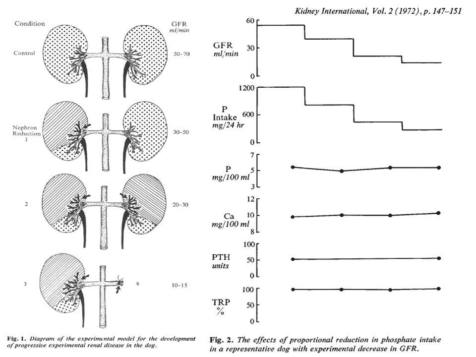 Ca és foszfátanyagcsere zavara krónikus urémiában