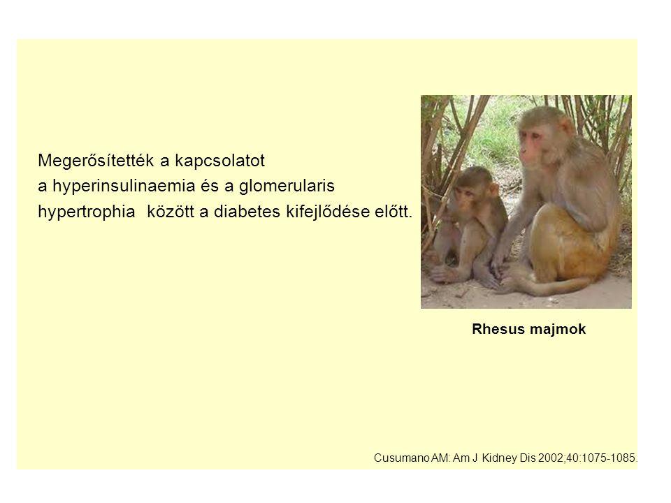 Megerősítették a kapcsolatot a hyperinsulinaemia és a glomerularis hypertrophia között a diabetes kifejlődése előtt. Cusumano AM: Am J Kidney Dis 2002