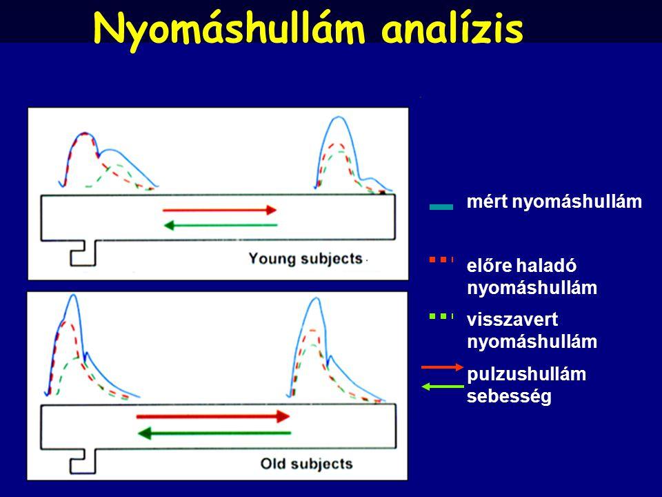 mért nyomáshullám előre haladó nyomáshullám visszavert nyomáshullám pulzushullám sebesség Nyomáshullám analízis