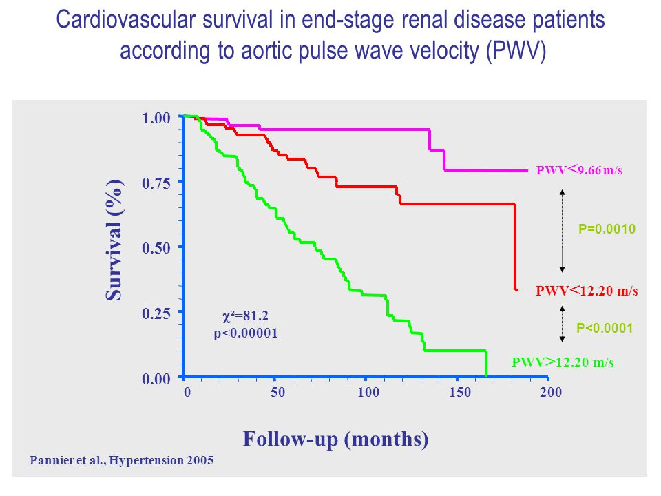 0.00 0.25 0.50 0.75 1.00 050100150200 Cardiovascular survival in end-stage renal disease patients according to aortic pulse wave velocity (PWV) Follow