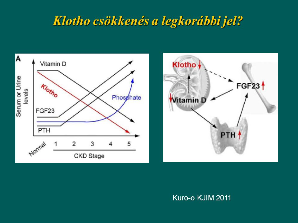 Klotho csökkenés a legkorábbi jel? Kuro-o KJIM 2011