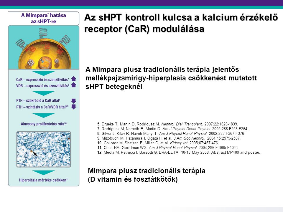 Cinacalcet kezelés (Mimpara) 30 mg/die (max 180 mg/die) PTH<150ng/lPTH = 150-300 ng/lPTH > 300 ng/l 2,1 2,4 > S-Ca >2,4 1,25(OH) 2 D 3 felfüggesztése Cinacalcet dózis 30 mg-al csökkentés PTH<150ng/l PTH >300 ng/l, S-Ca>2,37 mM, S-P>1,78 mM, PTH kontroll 1,78 > S-P >1,78 1,25(OH) 2 D 3 és Cinacalcet folytatása Cinacalcet folytatása 1,25(OH) 2 D 3 leállítása Ca mentes P kötő beállítása 2-3 havonta PTH kontroll Cinacalcet dózis növelés 30 mg-al 180 mg/die-ig PTH kontroll S-Ca<2,4 S-P<1,78 Cinacalcet folytatása 1,25(OH) 2 D 3 beállítása vagy emelése S-Ca >2,4 S-P>1,78 Cinacalcet folytatása Ca mentes P kötő, PTx