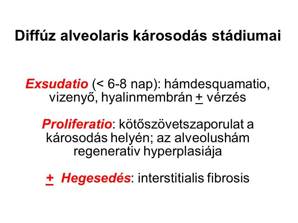 Diffúz alveolaris károsodás stádiumai Exsudatio (< 6-8 nap): hámdesquamatio, vizenyő, hyalinmembrán + vérzés Proliferatio: kötőszövetszaporulat a károsodás helyén; az alveolushám regenerativ hyperplasiája + Hegesedés: interstitialis fibrosis