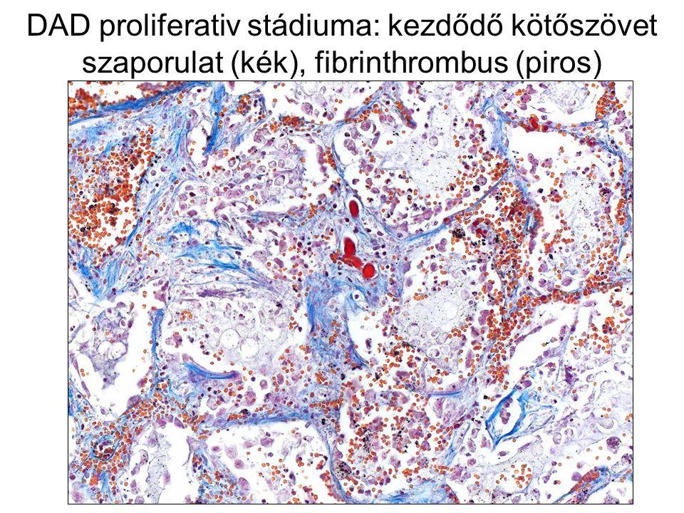 DAD proliferativ stádiuma: kezdődő kötőszövet szaporulat (kék), fibrinthrombus (piros)