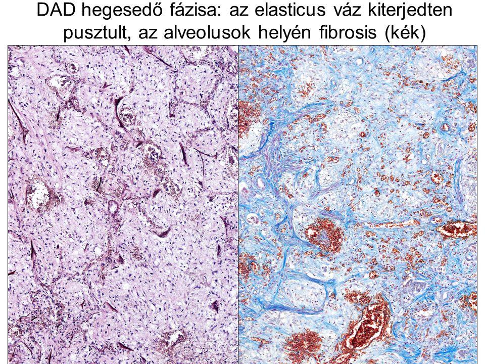 DAD hegesedő fázisa: az elasticus váz kiterjedten pusztult, az alveolusok helyén fibrosis (kék)