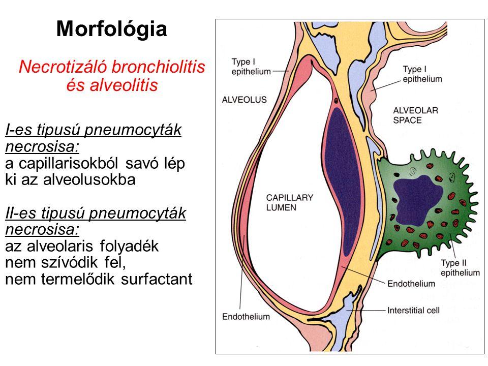 H1N1-fertőzésben meghaltak boncolása során az alábbi elváltozások a jellemzők Tracheobronchitis, necrotizáló bronchiolitis, diffúz alveoláris károsodás tüdővérzéssel vagy tüdővérzés nélkül Ezekre rárakódhat bacterialis pneumonia Fennállhat obesitás, cardiorespiratoricus betegség, immunsuppressiv állapot Az influenza-pneumonia morf.