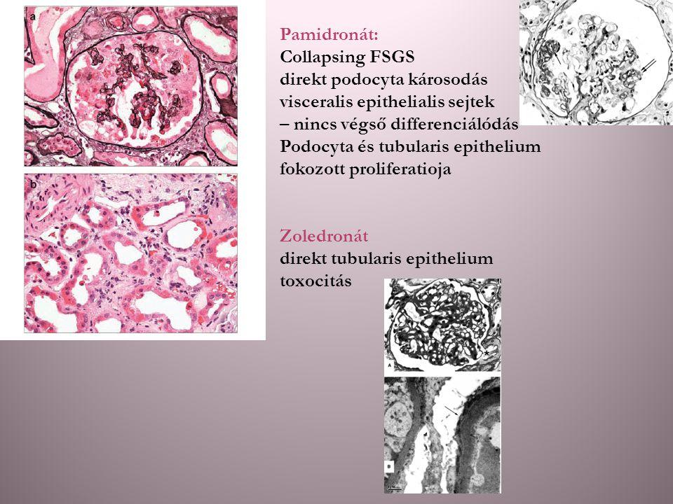 Pamidronát: Collapsing FSGS direkt podocyta károsodás visceralis epithelialis sejtek – nincs végső differenciálódás Podocyta és tubularis epithelium f