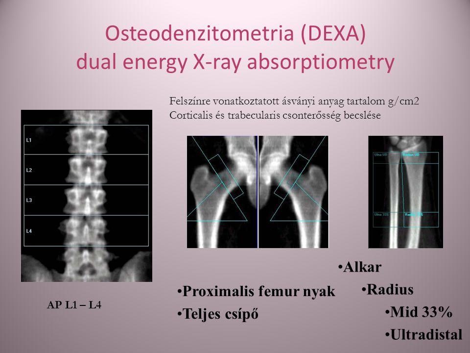 Osteodenzitometria (DEXA) dual energy X-ray absorptiometry Felszínre vonatkoztatott ásványi anyag tartalom g/cm2 Corticalis és trabecularis csonterőss